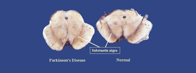Parkinson's Disease, Substantia Nigra