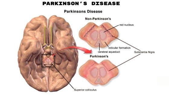 Parkinson's disease (1)-min