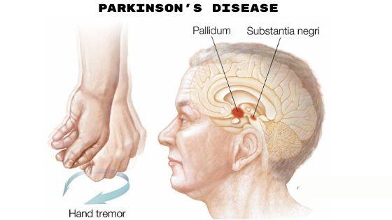 Parkinson's disease-min