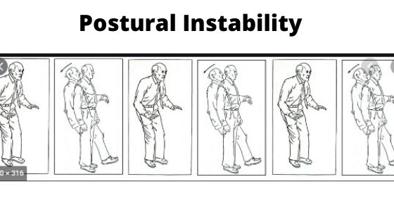 Postural Instability -symptoms-of-parkinson-disease