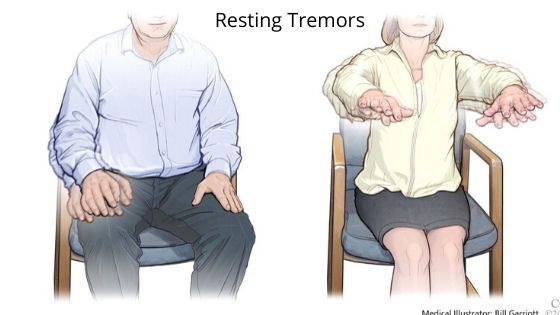 Resting Tremors-symptoms of Parkinson's disease