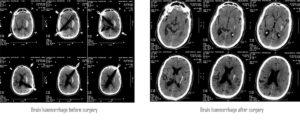 Brain Hamrange