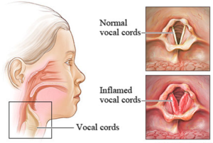 Vocal cords Of Human