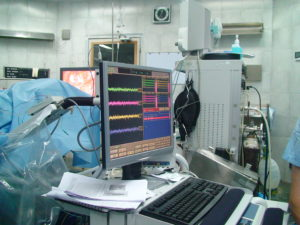 Intraoperative neurophysiological monitoring for Cervical rhizotomy