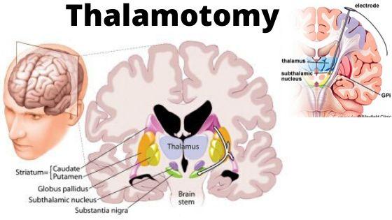 Thalamotomy-min