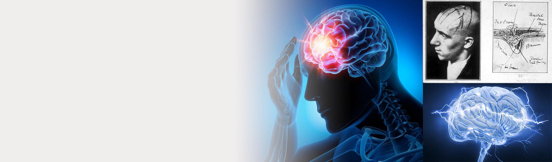 Epilepsy Problem in Human