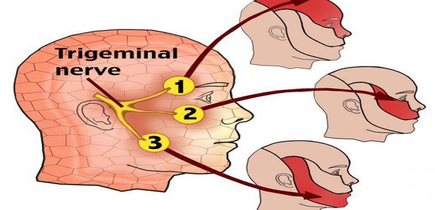Trigeminal Neuralgia Surgery