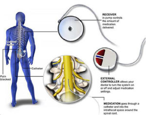 Components Of Body
