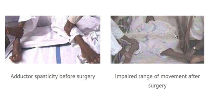 Before & After Surgery