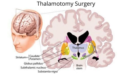 thalamotomy surgery-min