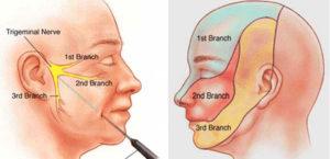 Trigeminal Neuro