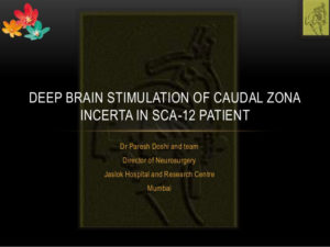 Deep Brain Stimualtion