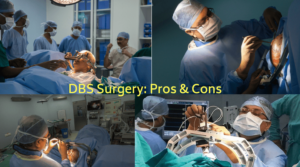 Deep-Brain-Stimulation-Pros-Cons