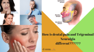 How-is-dental-pain-and-Trigeminal-Neuralgia-different