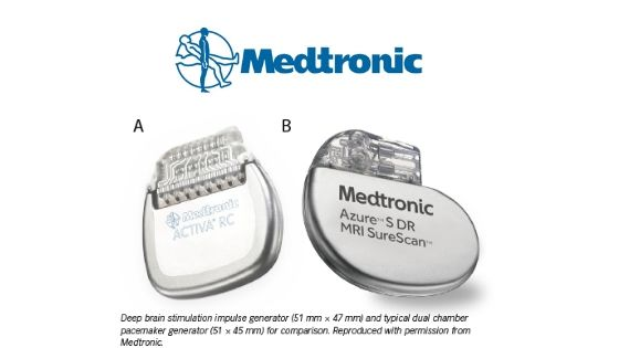 Deep-Brain-Stimulation- Medtronic-Pacemakers-min