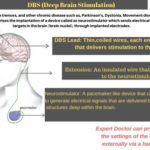 deep-brain-stimulation-surgery-all-you-wanted-to-know