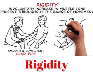 rigidity-parkinson's-patient-min